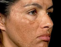 melasma effects on women whole face pictures