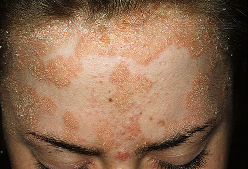 psoriasis on forehead