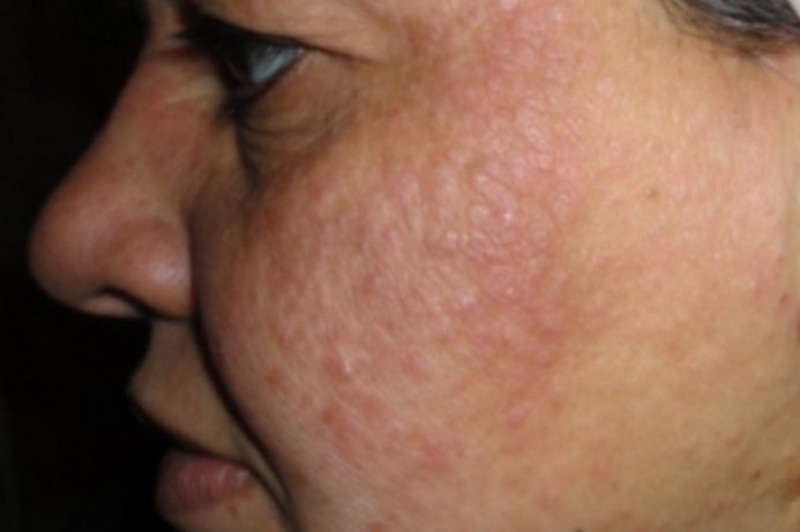 psoriasis on female face picture